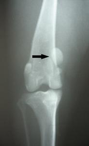 Ortopedija - iščašenje patele