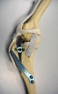 Ortopedija - prednji križni ligamenti -TTA