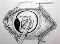 Katarakta - fakoemulzifikacija