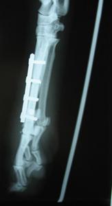 Ortopedija - osteosinteza pločom i vijcima