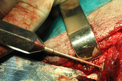 Neurokirurgija