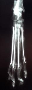 Ortopedija - Intramedularni čavao